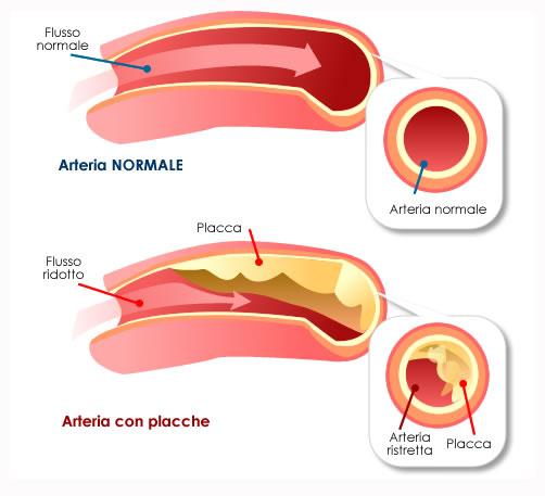 arterie con placche