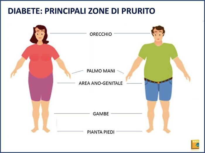 diabete: principali zone di prurito