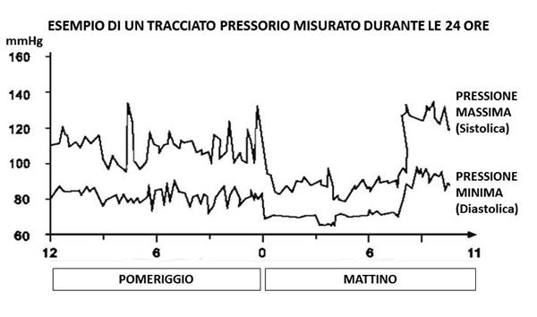esempio di un tracciato pressorio misurato durante le 24 ore