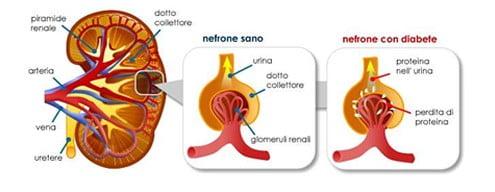 Come il diabete danneggia il rene