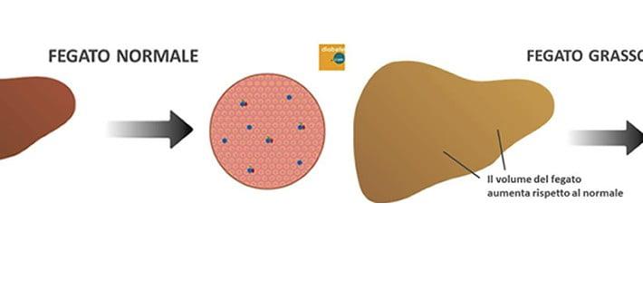 fegato grasso ovvero la steatosi epatica non alcolica (NAFLD)