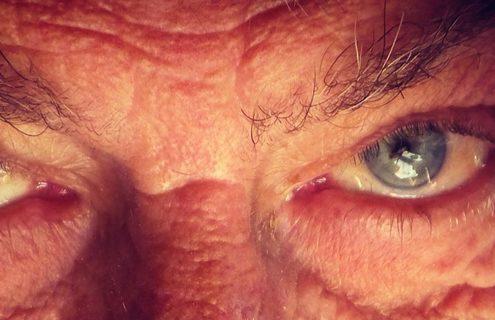 Diabete più avanzato, retina più sottile