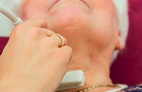 La tiroide nella terza età