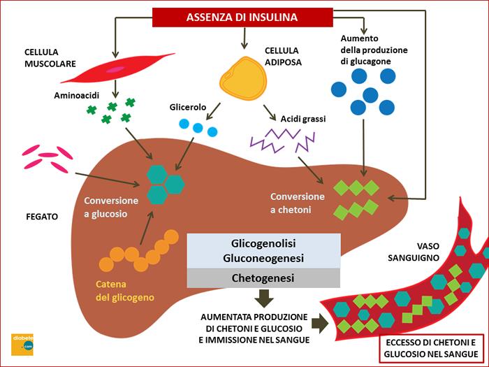 La chetoacidosi diabetica: che cos'è e perché si manifesta