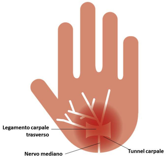 sindrome-del-tunnel-carpale-1
