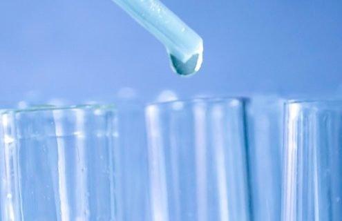 Test delle urine (glicosuria)