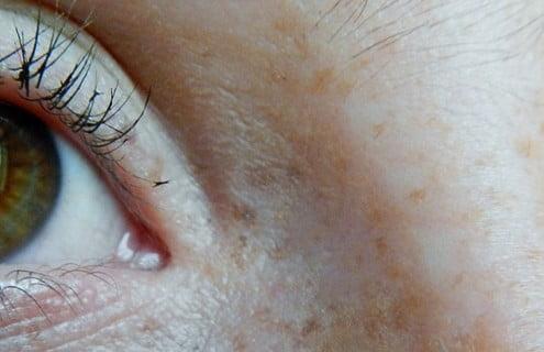 complicanze oculari