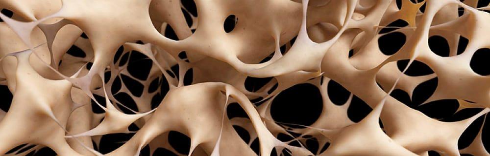 diabete e osteoporosi