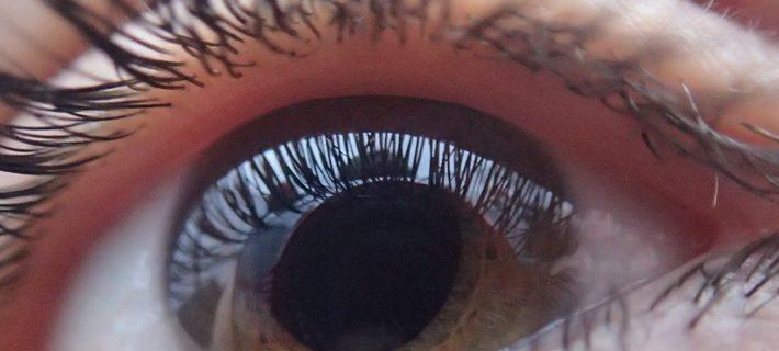 Screening della retinopatia diabetica: prima esperienza italiana di telemedicina