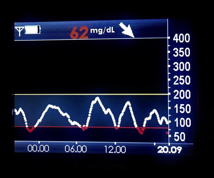 grafico-glicemico-con-ipoglicemia