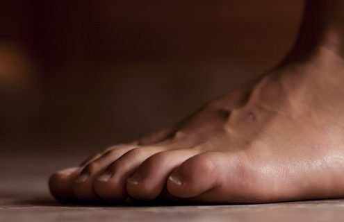 Piede diabetico: complicanza ineluttabile?