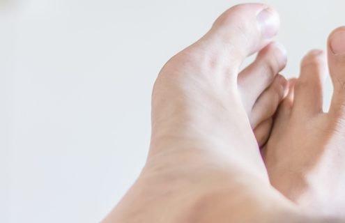 Piede diabetico: quando è necessario rivolgersi a un centro specialistico?