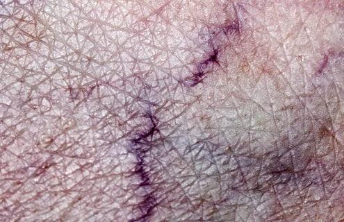 Vene varicose: nuove modalità d'intervento mininvasive