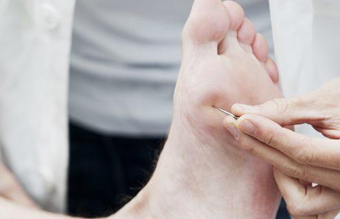 Com'è cambiato l'approccio al paziente con piede diabetico