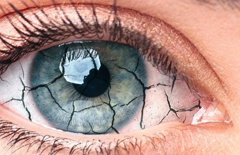 Occhio secco: quando il film lacrimale è alterato