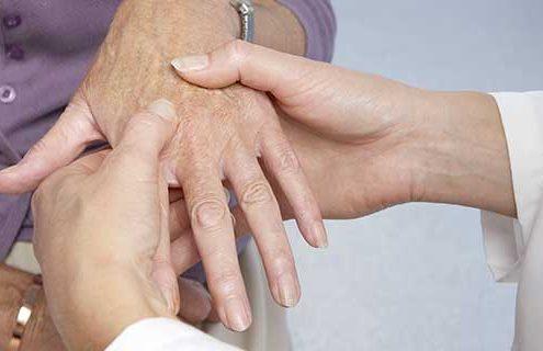 Diabete di tipo 2 e artrite reumatoide: le novità della terapia